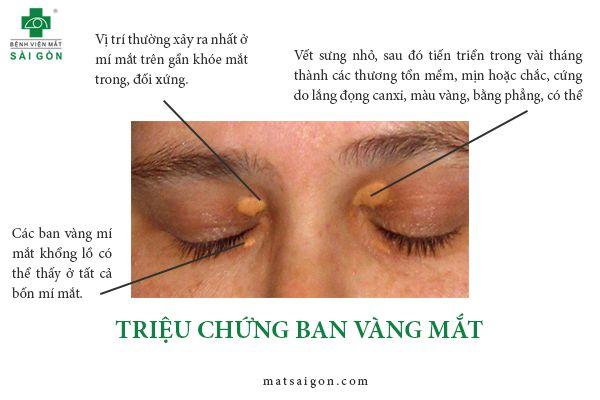 triệu chứng ban vàng mí mắt
