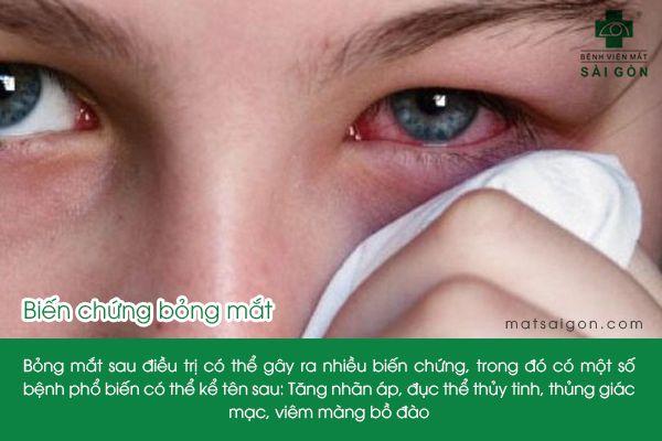 biến chứng bỏng mắt