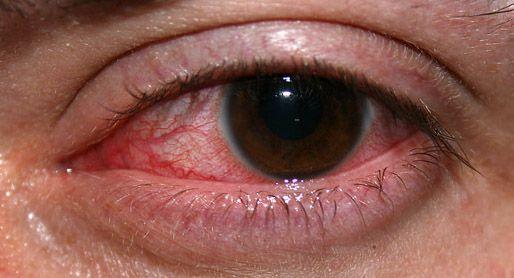 bỏng mắt do hóa chất