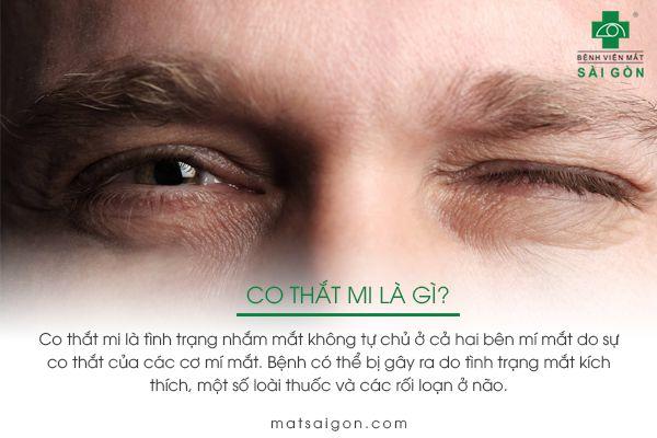 điều trị co thắt mi mắt