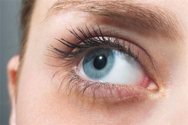 dị ứng mắt