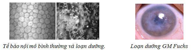 loan-duong-giac-mac