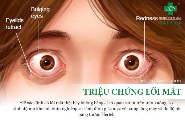 triệu chứng lồi mắt