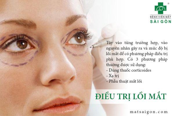 điều trị lồi mắt