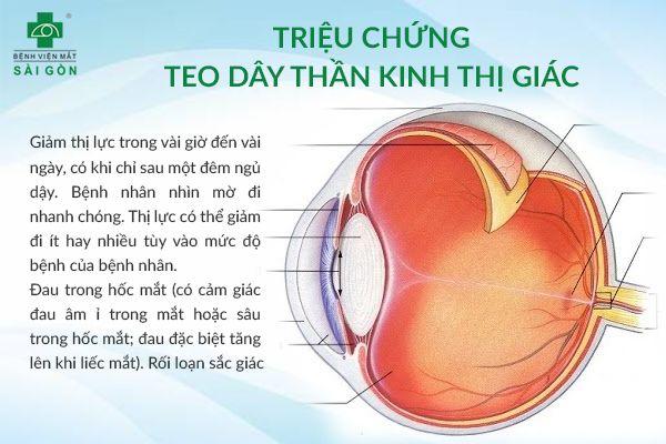 triệu chứng teo dây thần kinh thị giác