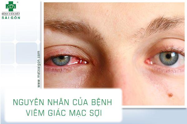 viêm giác mạc sợi-2
