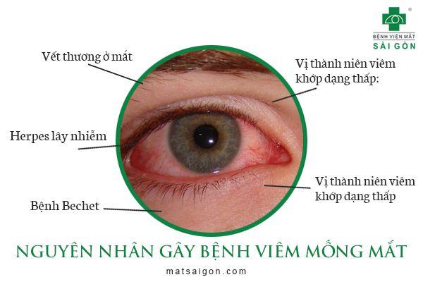 nguyên nhân viêm mống mắt