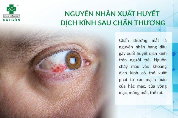 xuat-huyet-dich-kinh-do-chan-thuong-3