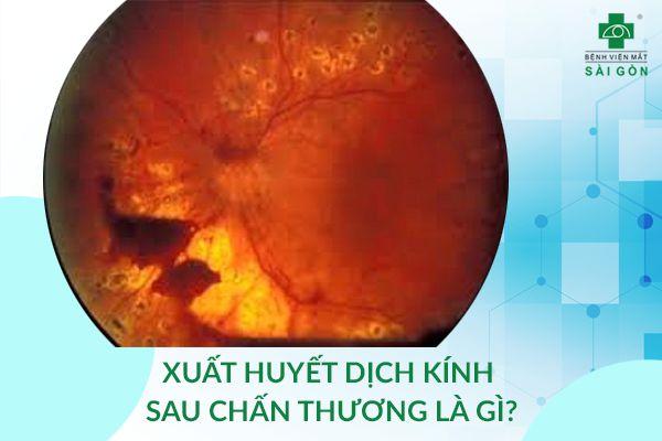 xuất huyết dịch kính do chấn thương